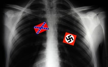xray_racism
